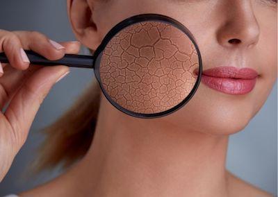 skin care pelle grassa 2