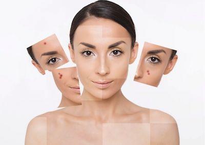 skin care pelle grassa 5